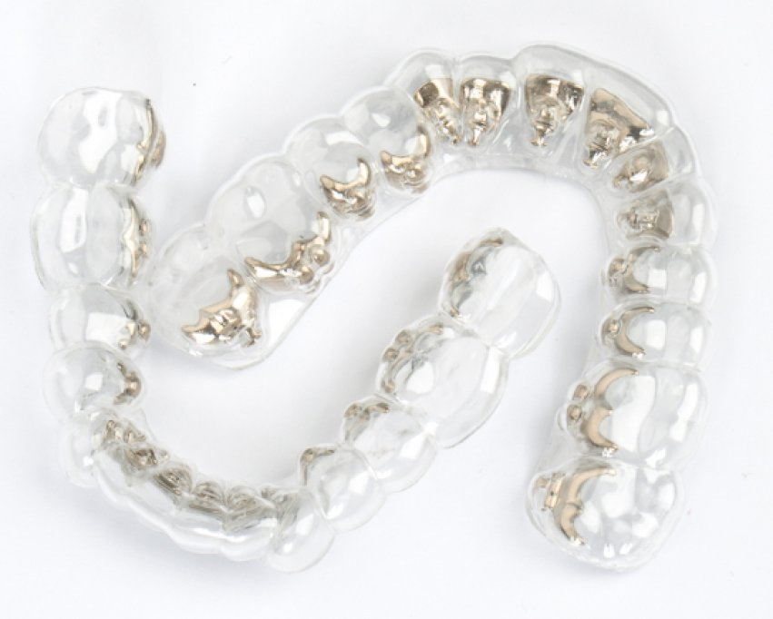 Dentcof - Aparate Ortodontice Invizibile
