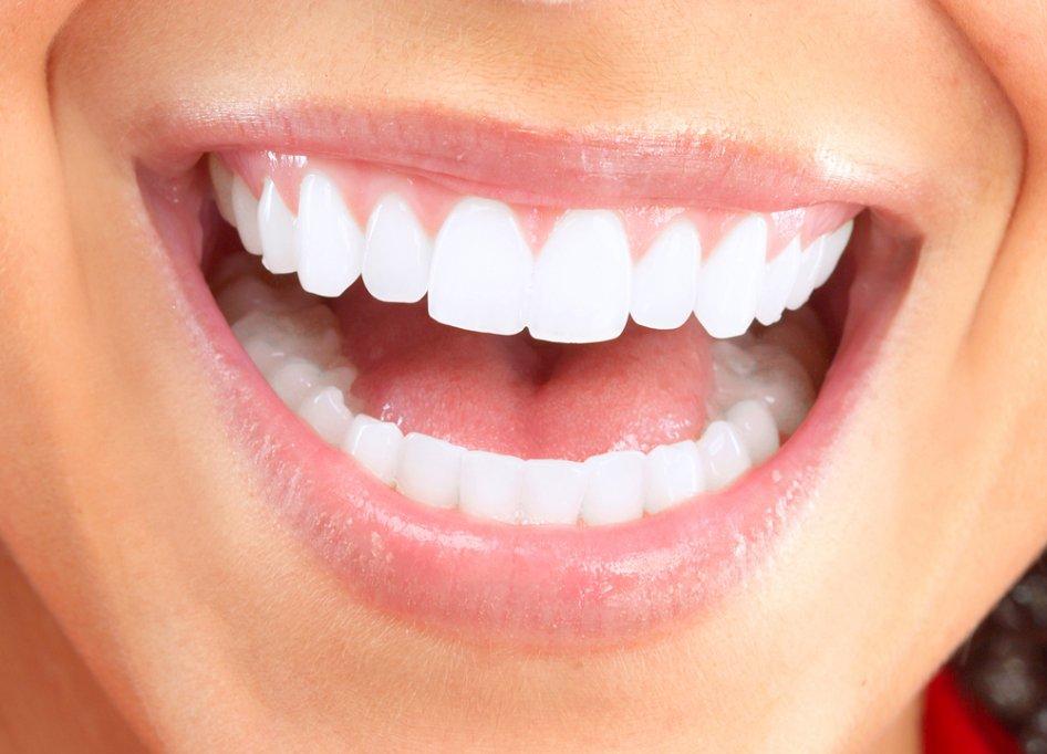 Coroanele dentare si utilitatea acestora