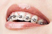 Celebritati care au purtat aparat dentar pentru adulti
