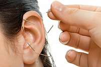 Auriculoterapia - acupunctura urechii