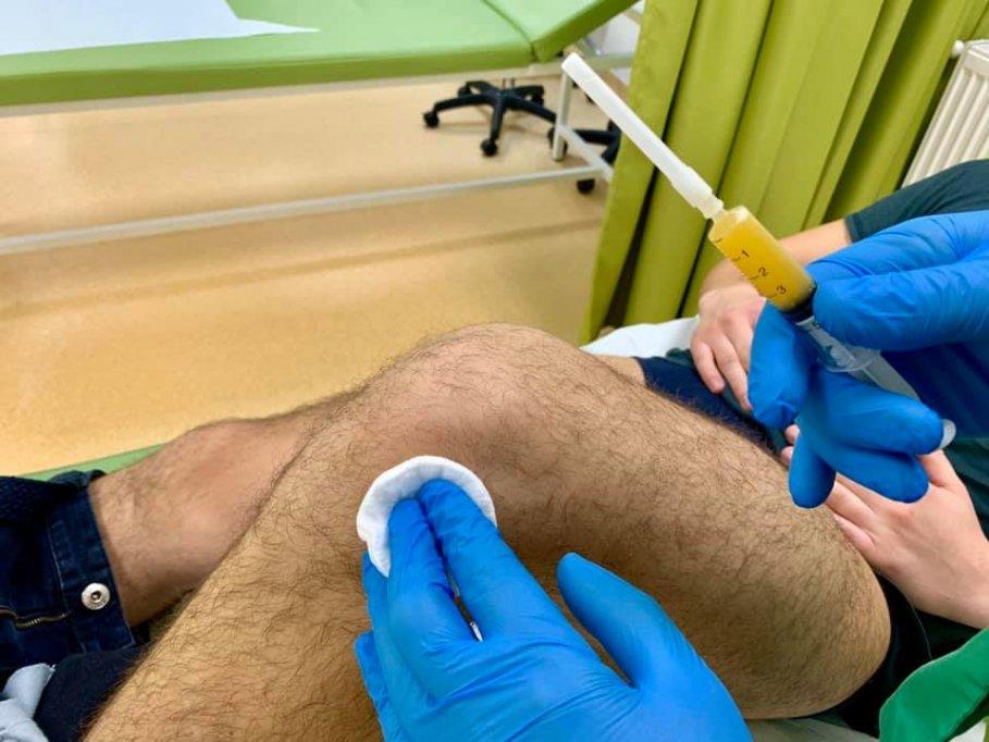 Infiltratii cu ozon in genunchi