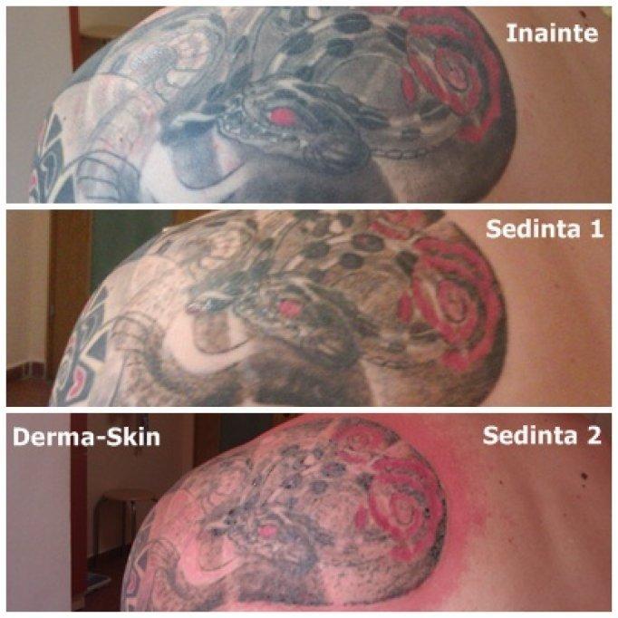 Indepartarea tatuajelor cu laser la Timisoara
