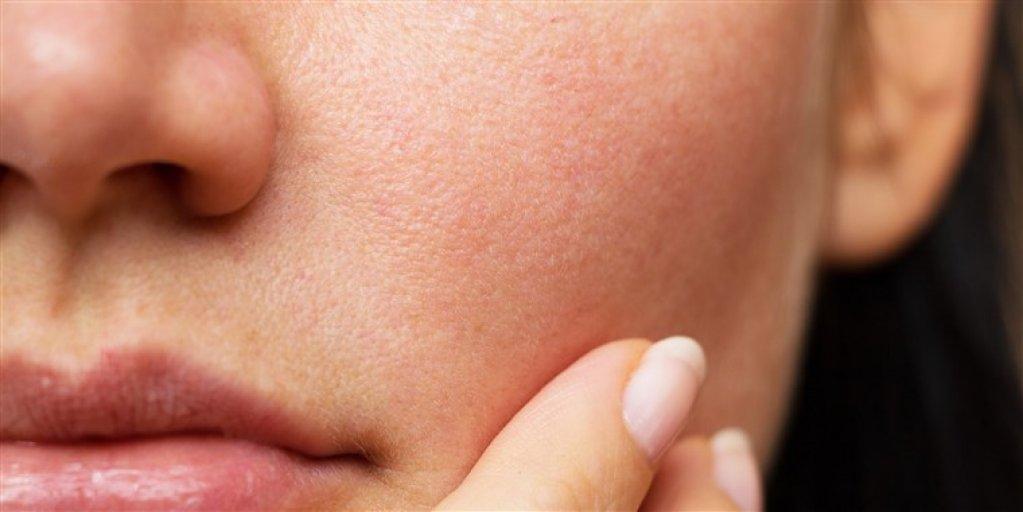 Pe cât de banal, pe atât de eficient - una dintre cele mai ieftine și bune soluții pentru pielea ta