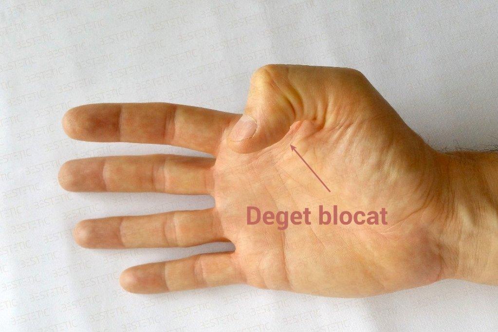 Degetul care se blocheaza