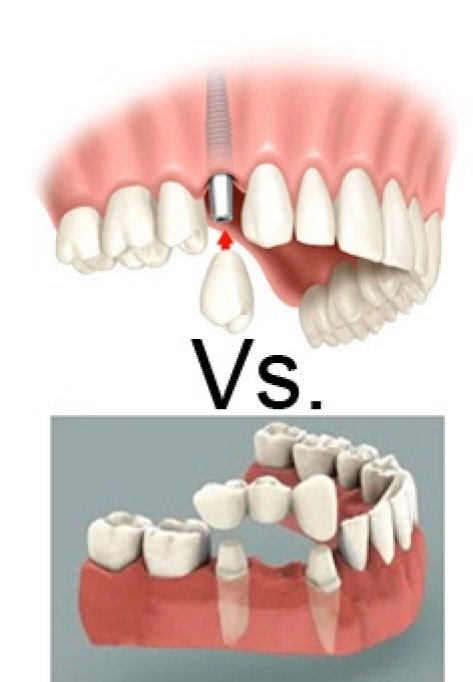 Implant dentar vs. Punte dentara