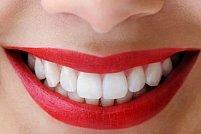 Clinicile stomatologice MegaSmile promoveaza sanatatea orala, incurajand pacientii la educatie pentru sanatate