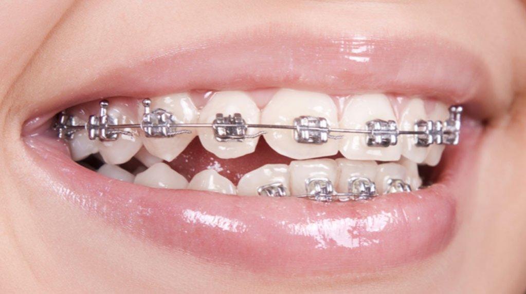 Cum sa mananci cu aparat dentar