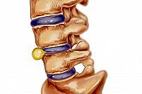 Hernia de disc – cauze şi simptome