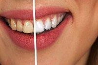 Reversul medaliei: ce pericole prezintă albirea dentară