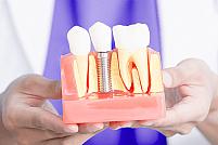 Alegerea intre implant dentar si punte este simpla! Iata de ce!