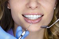 Ce este estetica dentara si de ce este atat de importanta pentru fiecare dintre noi?