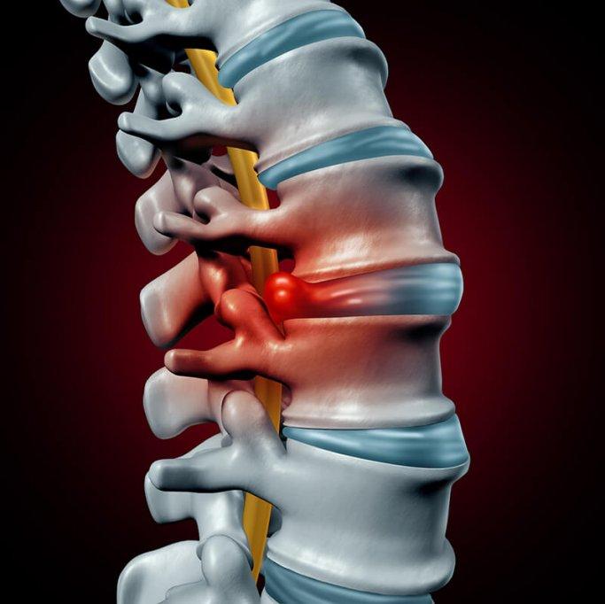 Poti scapa de durerile cauzate de hernia de disc fara operatie
