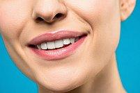 4 opțiuni pentru un zâmbet mai frumos